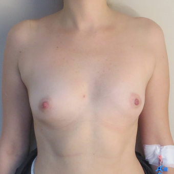 25-34 year old woman treated with Breast Augmentation before 3695145