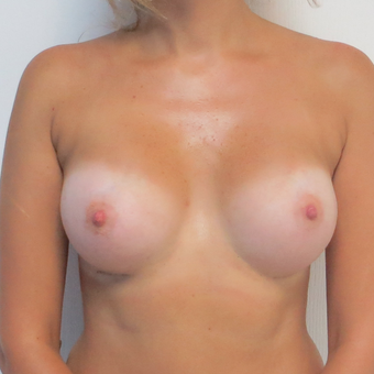 25-34 year old woman treated with Breast Augmentation after 3695145