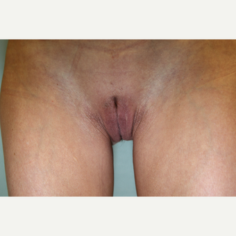 45-54 year old woman treated with Labiaplasty after 3768092