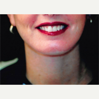 45-54 year old woman treated with Neck Lift after 3764504