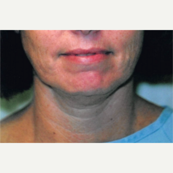 45-54 year old woman treated with Neck Lift before 3764504