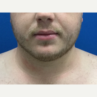 25-34 year old man treated with Liposculpture after 3496319