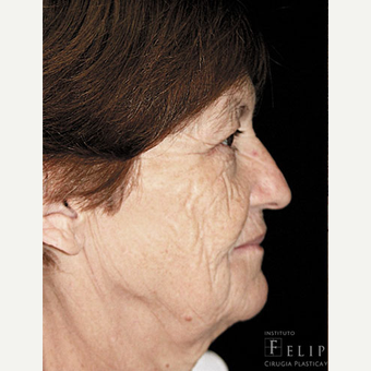 55-64 year old woman treated with Chemical Peel before 3417616