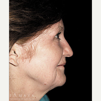 55-64 year old woman treated with Chemical Peel after 3417616