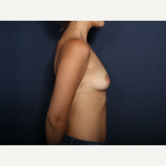 25-34 year old woman treated with Breast Augmentation (view 2 of 2) before 3424525