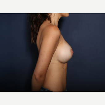 25-34 year old woman treated with Breast Augmentation (view 2 of 2) after 3424525