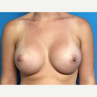 25-34 year old woman treated with Breast Augmentation after 3164643
