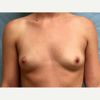 25-34 year old woman treated with Breast Augmentation before 3164643
