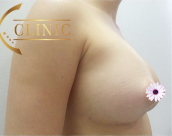 35-44 year old woman treated with Breast Augmentation after 3765986
