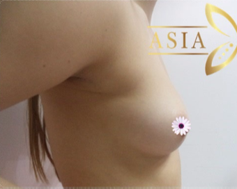 35-44 year old woman treated with Breast Augmentation before 3765986