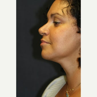 40 year old woman treated with Chin Liposuction after 1553823