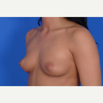 25-34 year old woman treated with Breast Augmentation before 3137547