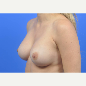 25-34 year old woman treated with Breast Augmentation after 3137547