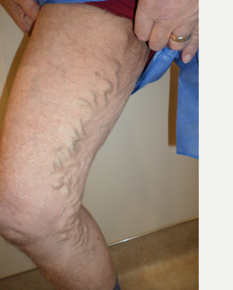 65-74 year old man treated with Vein Treatment before 3845983