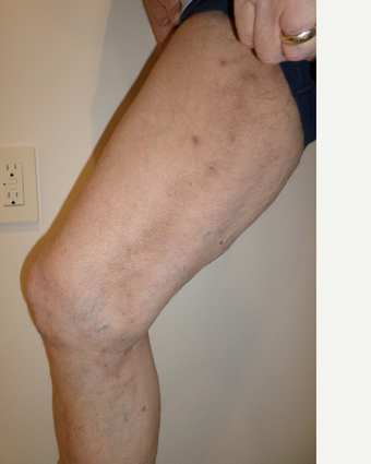 65-74 year old man treated with Vein Treatment after 3845983