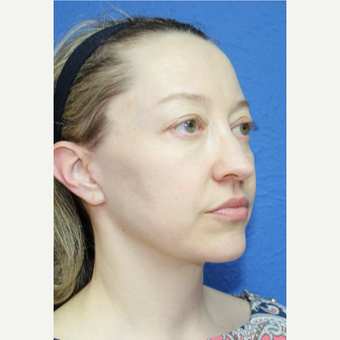 35-44 year old woman treated with Facelift after 3277303