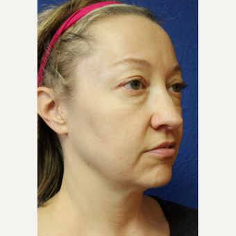 35-44 year old woman treated with Facelift before 3277303