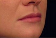 Restylane for Lip Enhancement after 53755