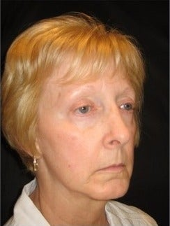 55-64 year old woman treated with Non Surgical Face Lift before 3181334