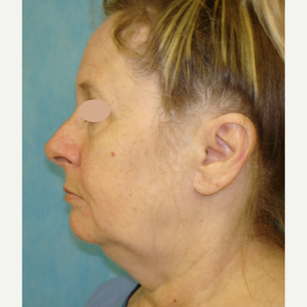 55-64 year old woman treated with Facelift before 3703965