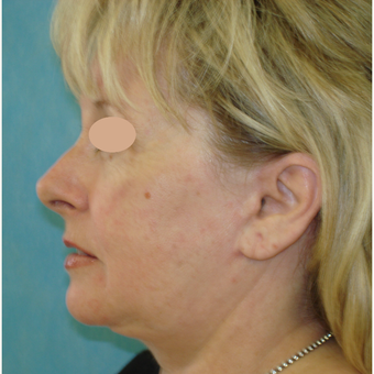 55-64 year old woman treated with Facelift after 3703965