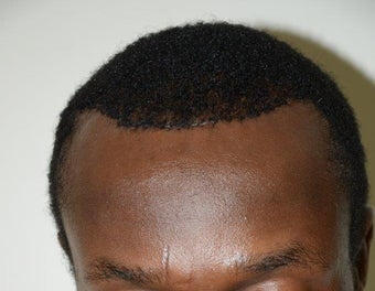 Surgical Hairline Advancement/Forehead Shortening Procedure 1282727