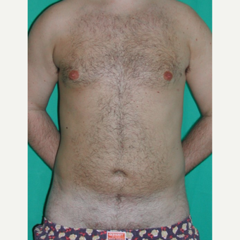 25-34 year old man treated with Liposuction after 3245921