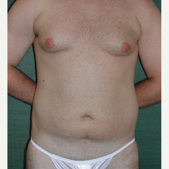25-34 year old man treated with Liposuction before 3245921