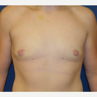 17 or under year old man treated with Male Breast Reduction after 3128654