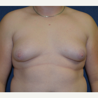 17 or under year old man treated with Male Breast Reduction before 3128654