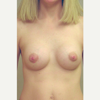Breast Implants after 3241545
