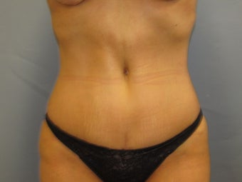 Abdominoplasty (Tummy Tuck) on 46-year-old after 951018