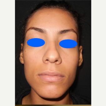 25-34 year old woman treated with Nose Surgery before 3499354