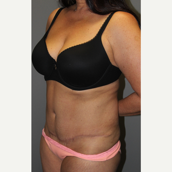 45-54 year old woman treated with Tummy Tuck after 3129276