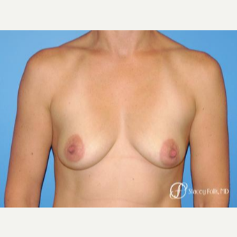 35-44 year old woman treated with Breast Lift with Implants before 3070928