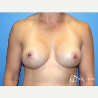 35-44 year old woman treated with Breast Lift with Implants after 3070928