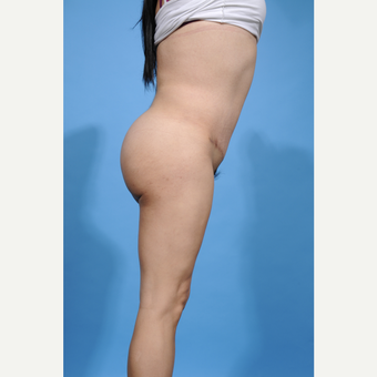 35-44 year old man treated with Brazilian Butt Lift after 3338883