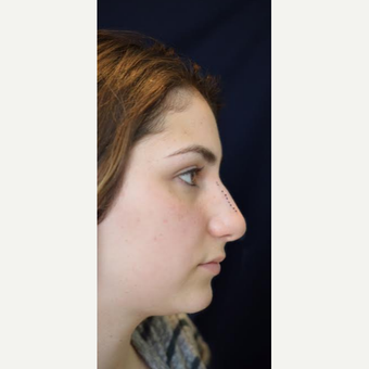 18-24 year old man treated with Rhinoplasty before 3471694