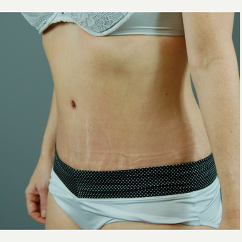 35-44 year old woman treated with Tummy Tuck after 3310799