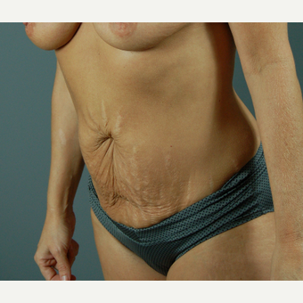 35-44 year old woman treated with Tummy Tuck before 3310799