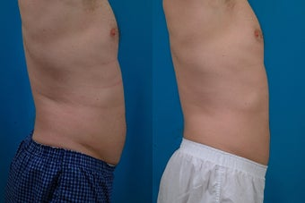 45-year-old man treated with Liposuction. after 574554
