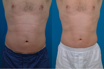 45-year-old man treated with Liposuction. before 574554