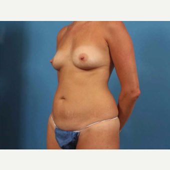 35-44 year old woman treated with Breast Augmentation before 3787274