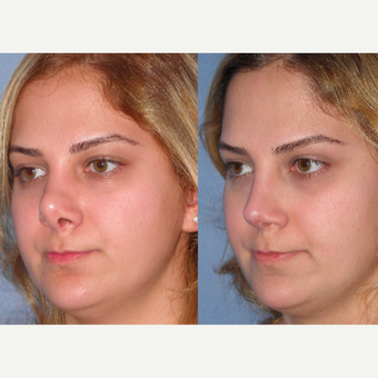 25-34 year old woman treated with Revision Rhinoplasty before 3521441