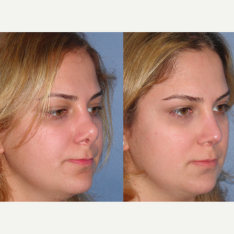 25-34 year old woman treated with Revision Rhinoplasty after 3521441