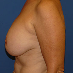 Breast Implant Removal before 2267569