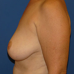 Breast Implant Removal after 2267569
