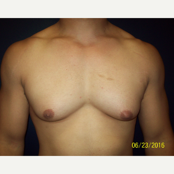 30 year old man treated with Lipo and Open Excision Gynecomastia before 3201594