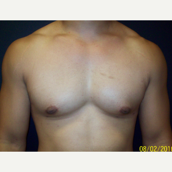 30 year old man treated with Lipo and Open Excision Gynecomastia after 3201594
