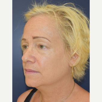 55-64 year old woman treated with Neck Lift before 3504035